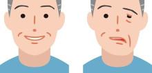 Membedakan Paralisis Nervus Fasialis Sentral dan Perifer