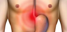 Komplikasi Pulmonal pada GERD