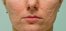 Pilihan Terapi untuk Atrophic Acne Scar
