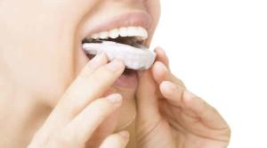 ฟอกสีฟัน ฟอกแบบไหนปลอดภัยและได้ผล?