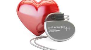 เครื่องกระตุ้นหัวใจ คืออะไร ใช้กรณีไหนบ้าง ?