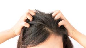 คันหัว เกิดจากอะไรและรักษาได้อย่างไร