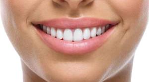 Veneer ทางเลือกใหม่เพื่อฟันสวย