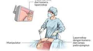 Kelebihan Teknik Bedah Laparoskopi