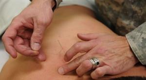 Apakah Akupunktur Bermanfaat dalam Penanganan Nyeri Kronis