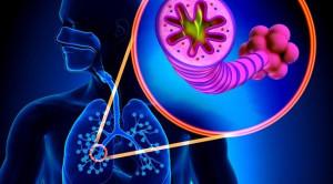 Efek Samping Sistem Kardiovaskular pada Bronkodilator Kerja Panjang untuk Penyakit Paru Obstruktif Kronis
