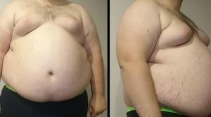 Liraglutide, Obat Antidiabetes untuk Menanggulangi Obesitas