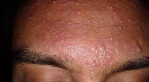 Terapi Isotretinoin Oral pada Acne Vulgaris