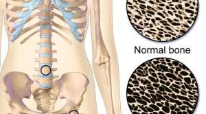 Rekomendasi ACR Terkini Mengenai Glucocorticoid Induced Osteoporosis dan Penerapannya di Indonesia