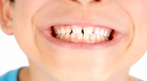 ฟันห่าง เกิดจากอะไร แก้ไขได้หรือไม่ ?