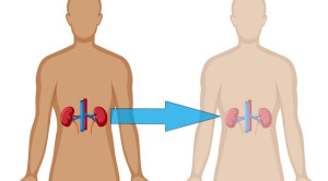 Risiko Kesehatan pada Donor Ginjal Hidup
