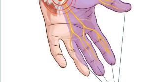Injeksi Steroid dengan Panduan Ultrasonografi untuk Penanganan Sindrom Terowongan Karpal Mencegah Terjadinya Komplikasi