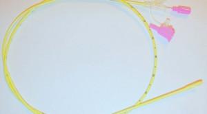 Metode Konfirmasi Pemasangan Nasogastric Tube