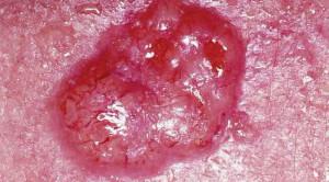Vaksin HPV untuk Mencegah Kanker Kulit