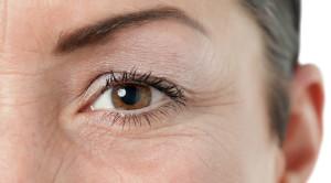 ตีนกา กับแนวทางรักษาเพื่อฟื้นฟูผิวอ่อนวัย