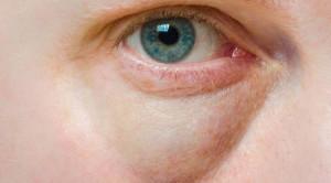 Cara Menghilangkan Kantung Mata dan Lingkaran Hitam