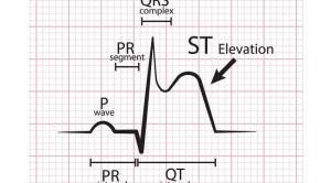 Diagnosis Banding Elevasi Segmen ST pada Elektrokardiografi