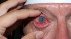 Efektifitas dan Keamanan Penggunaan Anestetik Topikal pada Abrasi Kornea