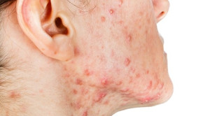 Pemberian Lactoferin Oral pada Terapi Acne Vulgaris