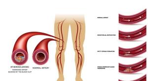 Peningkatan Risiko Penyakit Arteri Perifer pada Infeksi HIV