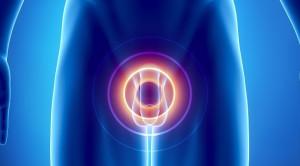 Potensi Risiko Skrining Prostate Specific Antigen (PSA)