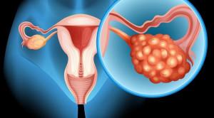 Risiko Kanker Ovarium pada Endometriosis