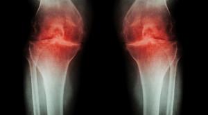 Peran Glukosamin-Kondroitin dalam Penatalaksanaan Osteoarthritis