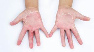 Membedakan Dermatitis Kontak Iritan dengan Dermatitis Kontak Alergi