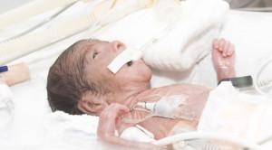 Pedoman Asupan Nutrisi bagi Bayi Prematur