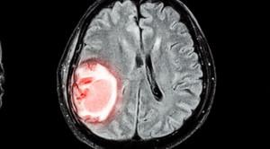 Kontroversi Penurunan Tekanan Darah pada Fase Akut Stroke Hemoragik