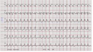 Skoring untuk Deteksi Stroke karena Atrial Fibrilasi – Telaah Jurnal