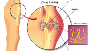 Terapi Dosis Titrasi Lebih Baik Dibandingkan Dosis Tetap untuk Gout