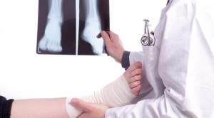 Peran Ottawa Ankle Rules Dalam Mendiagnosis Ankle Fracture