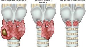 Untung Rugi Operasi Transoral Endoscopic Thyroidectomy via Vestibular Approach (TOETVA)
