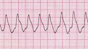 Radioablasi, Potensi Terapi Baru untuk Ventricular Tachycardia