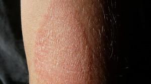 Efektivitas Antihistamin Oral sebagai Terapi Adjuvan Penyakit Dermatitis Atopik