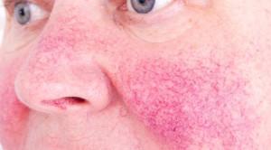 Pemilihan Bentuk Sediaan Antibiotik untuk Penanganan Rosacea