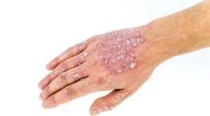 Risiko Infeksi Serius pada Pasien Psoriasis yang Mendapatkan Medikasi Sistemik – Telaah Jurnal