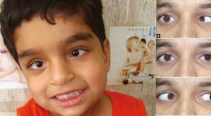 Pendekatan Klinis pada Pasien dengan Kelemahan Saraf Abducens