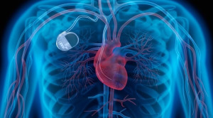 Peran Envelope Antibiotic dalam Pencegahan Infeksi Pemasangan Alat Elektronik Kardiovaskular Implan