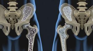 Teriparatide vs Risedronate untuk Osteoporosis - Telaah Jurnal