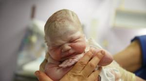 Skor APGAR pada Pemeriksaan Bayi Baru Lahir