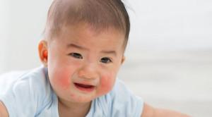 Keseimbangan Mikrobiota Usus: Peran Sinbiotik untuk Mencegah Alergi pada Anak