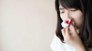 สาเหตุของเลือดกำเดาไหลบ่อย และวิธีป้องกันที่ได้ผล