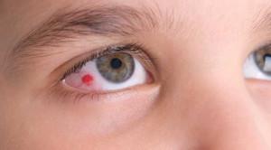 เส้นเลือดฝอยในตาแตกอันตรายไหม ดูแลตนเองอย่างไร