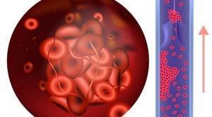 Risiko dan Manfaat Direct Oral Anticoagulant Versus Warfarin pada Kondisi Nyata: Studi Kohort di Pelayanan Kesehatan Primer – Telaah Jurnal Alomedika