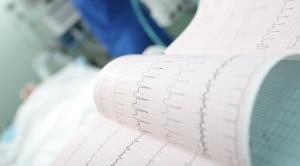 Algoritma BARCELONA untuk Diagnosa Infark Miokard Akut pada LBBB