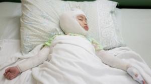 Efikasi Wet Dressing Menggunakan Topikal Kortikosteroid pada Anak dengan Dermatitis Atopik