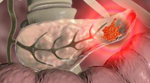 Operasi Bypass Dini vs Pemasangan Stent Endoskopi untuk Kanker Pankreas – Telaah Jurnal Alomedika