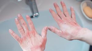 Perawatan Sawar Kulit pada Penderita Dermatitis Atopik di Era Pandemi COVID-19
